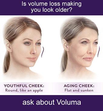 Voluma Long Island Ny Vita Ageless Medical Aesthetics