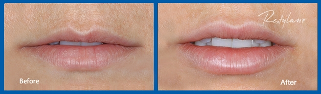 restylane-lips-before-and-after-photo2