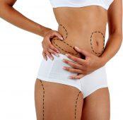 Fat Transfer, Liposuction and Brazilian Butt Lift
