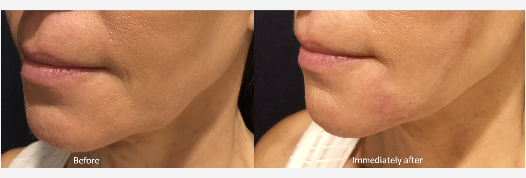 pdo-thread-lift-vitamedspa-before-after